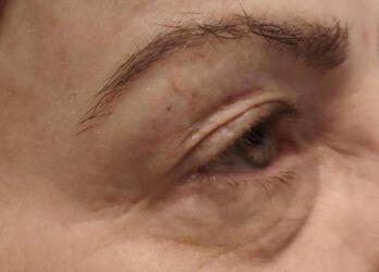 indiba contorno de los ojos